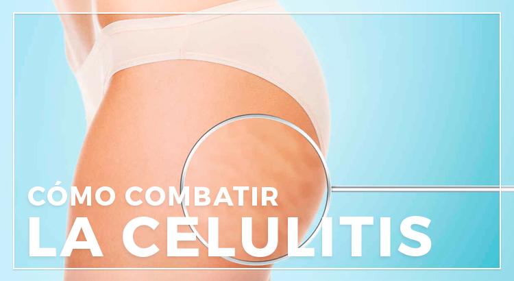 La celulitis y sus remedios