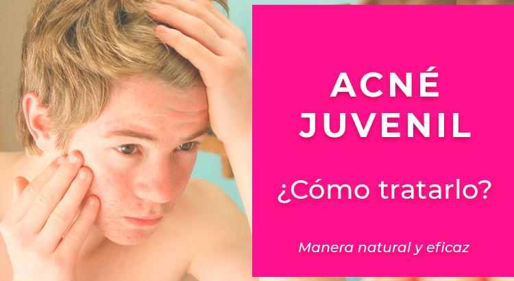 Acné juvenil: Cómo tratarlo de manera natural y eficaz